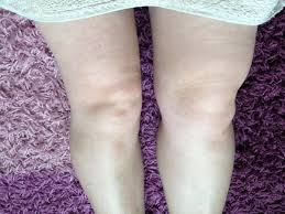 Swelling above the knee