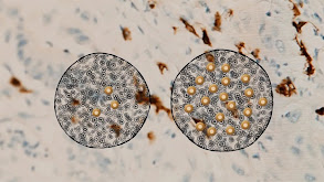 Immunoscore: A Clearer Cancer Test thumbnail
