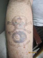 Photo: Laser Tattoo Removal at Las Vegas Dermatology