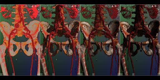 DroidRender - 3D DICOM viewer 3.9.2 screenshots 11