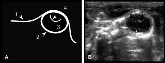 (A) Schematic representation.  (B) Actual ultrasonogram of a fetal eye.