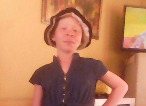 Dubbele lewenslange vonnis vir onderwyser wat tiener met albinisme vermoor het weens muti - TimesLIVE