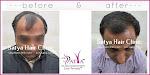 Hair Transplantation Clinic in Delhi - Satya Hair Transplant Clinic Delhi