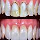 طرق علاج تسوس الاسنان Android apk