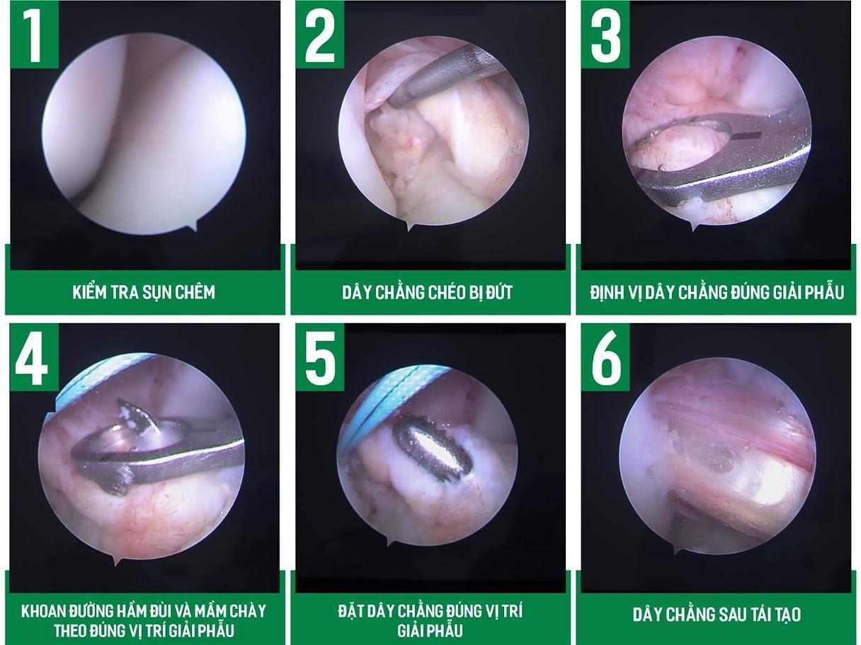 Hình ảnh phẫu thuật nội soi tái tạo dây chằng chéo trước qua màn hình máy tính