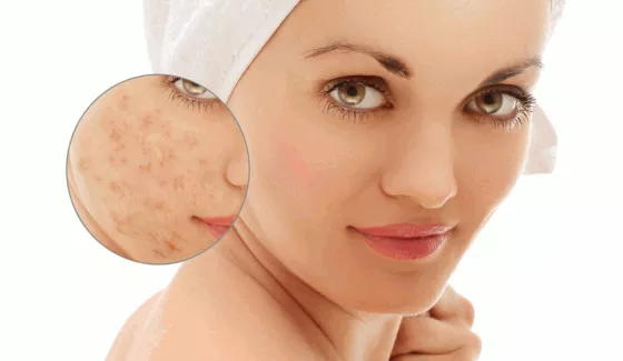 Super easy home remedies to get rid of those dreaded acne marks