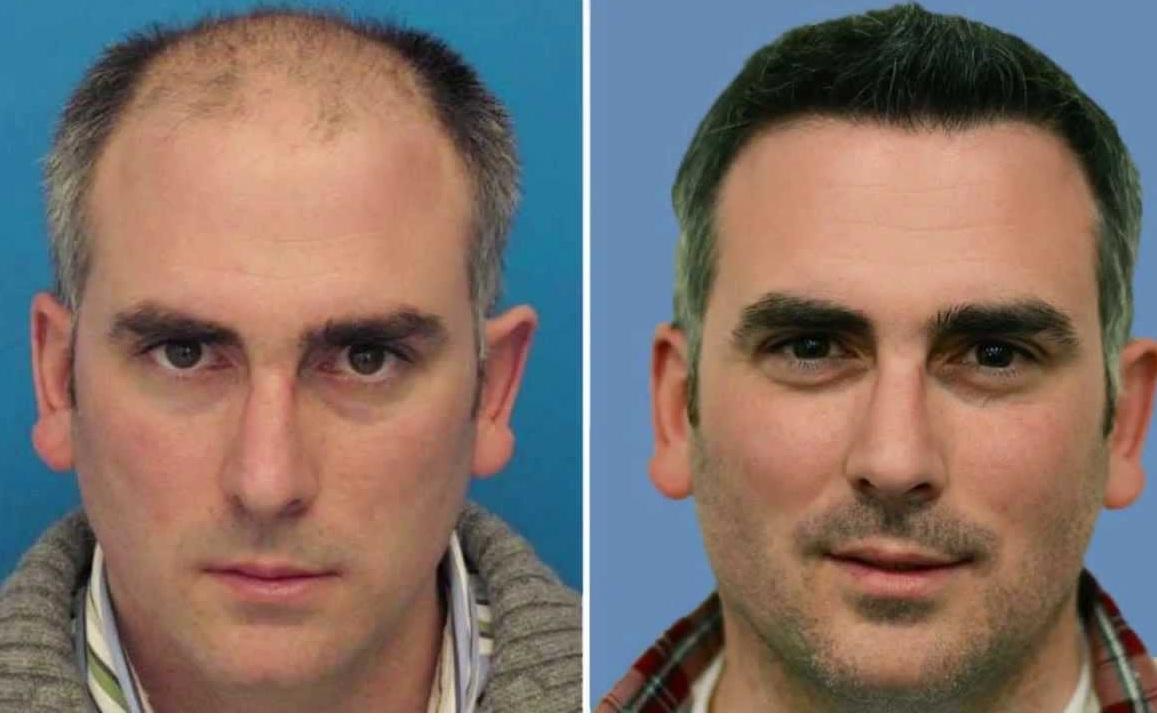 Saç Ekletmenin Öncesi ve Sonrası