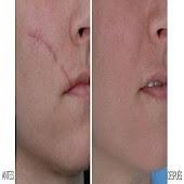 Tải elimina cicatrices APK