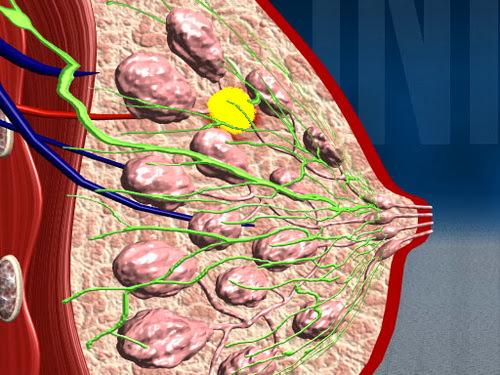 Народное лечение мастопатии