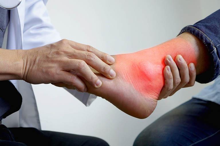 Bệnh Gout (Gút) Là Gì? Nguyên Nhân, Dấu Hiệu và Chữa Trị - Vhea Việt Nam -  Sức Khỏe và Y Tế Cộng Đồng - Liferay