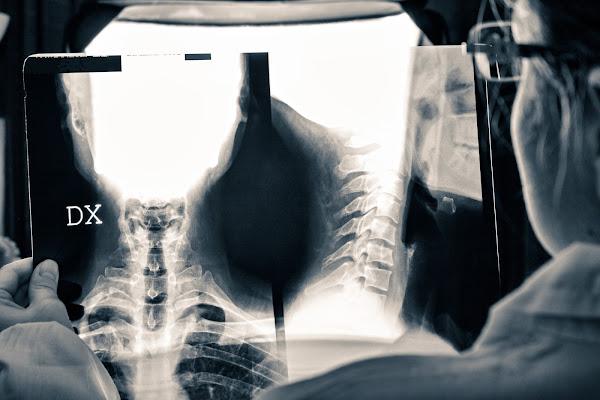 X-Ray di ENZOART