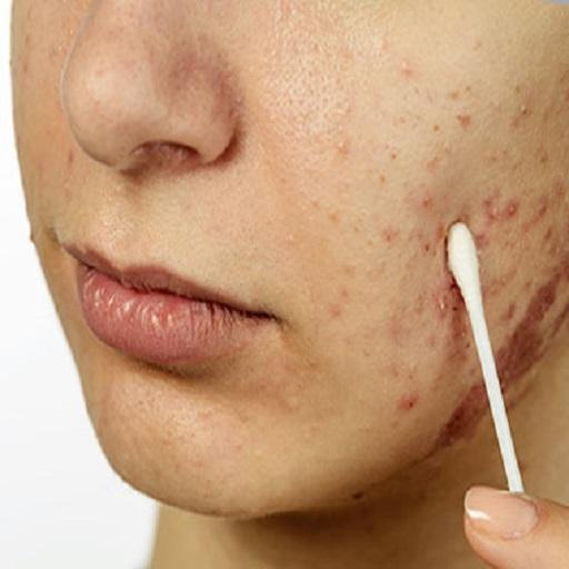 Basics Of All Skin Diseases Android APK Download Free By Fadevs