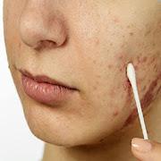 Basics of All Skin Diseases