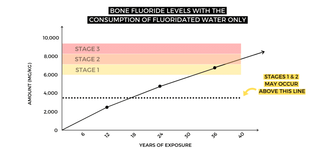 bone fluoride levels with the consumption of fluoridated water only- with stages of skeletal fluorosis