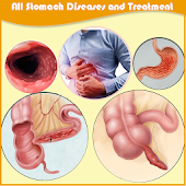 All stomach diseases and treatment