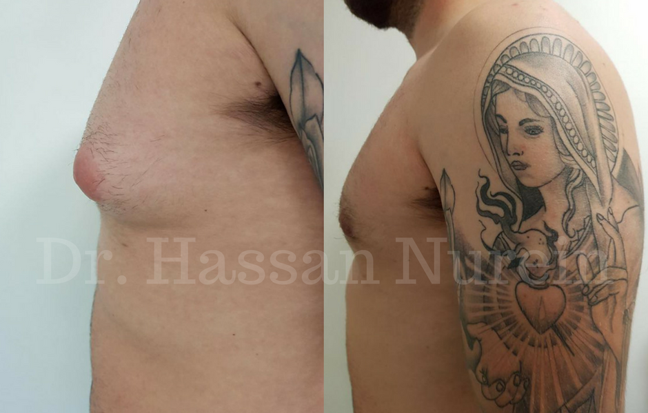 Gynecomastia before and after