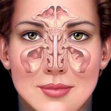 Obat Peradangan Sinusitis