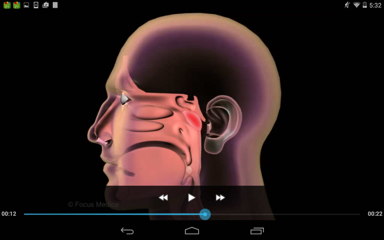 Otolaryngology-Dictionary- screenshot