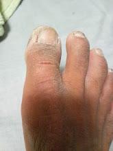 Photo: 足の親指、アカギレ! 海水がかかると、激ヤバ!たまらん!