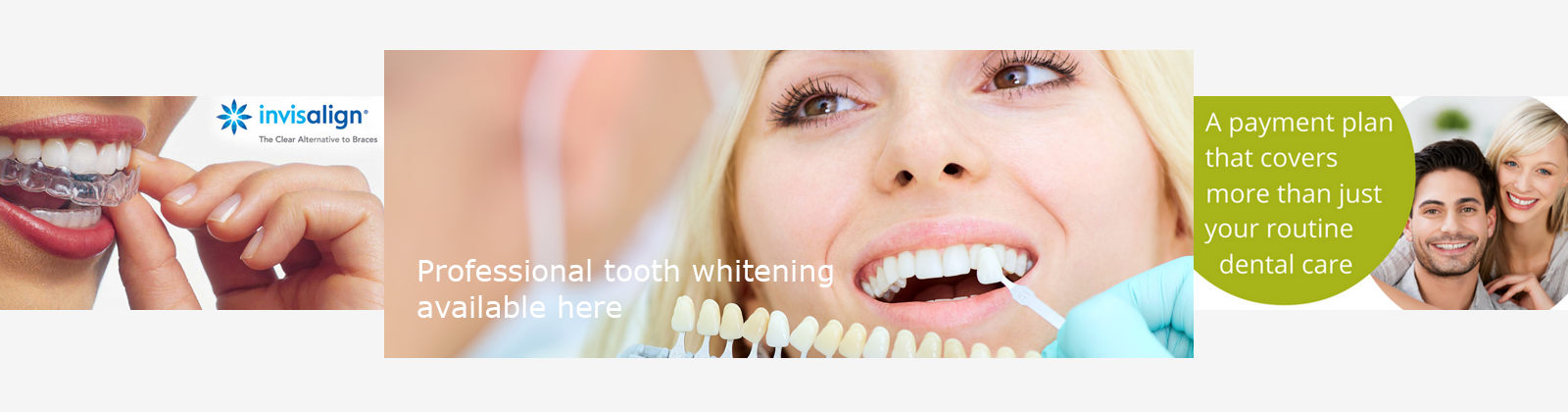 a dentist looking at a patients teeth for implants or whitening