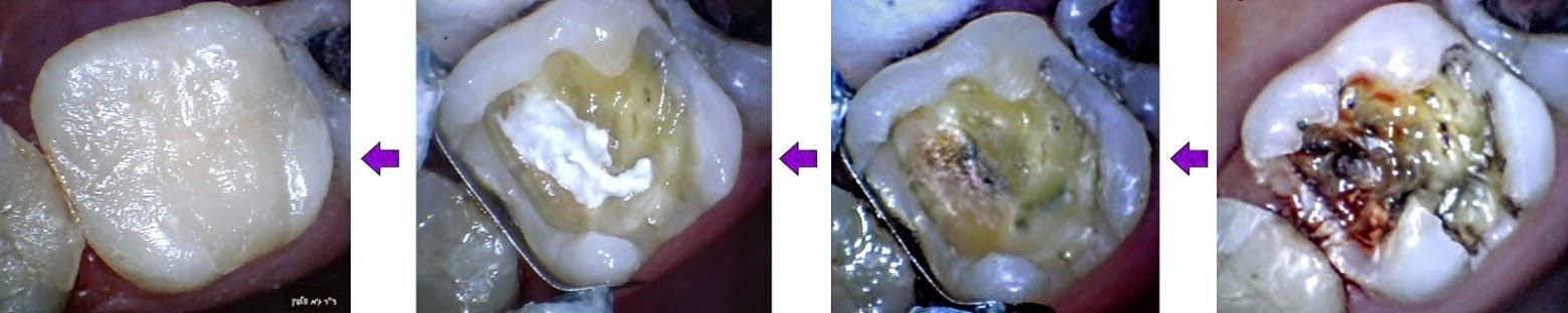 """כיפוי מוך - להציל שן מטיפול שורש וכתר למרות ריקבון עמוק - ד""""ר גיא וולפין"""