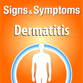 Signs & Symptoms Dermatitis