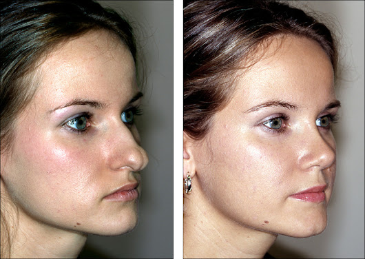 Rhinoplasty - Accentuate the Beauty in You!!