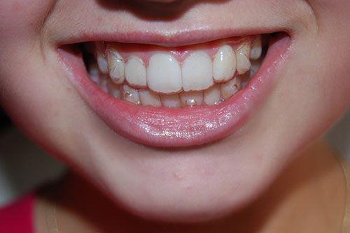 Những phương pháp niềng răng phổ biến nhất hiện nay 1