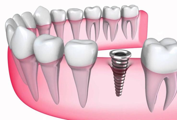 Trồng răng implant mất bao lâu? Thời gian thực hiện trồng implant 1