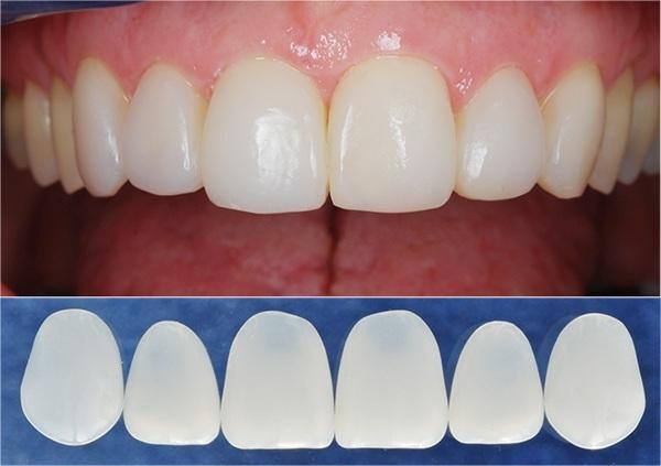 Bọc răng sứ toàn hàm mất bao lâu nhanh nhất hiện nay?