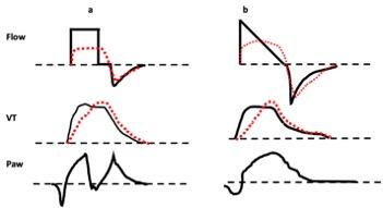 Waveforms for tidal volume mismatch