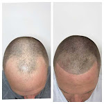 Have Knowledge About Hair Restoration In New York City