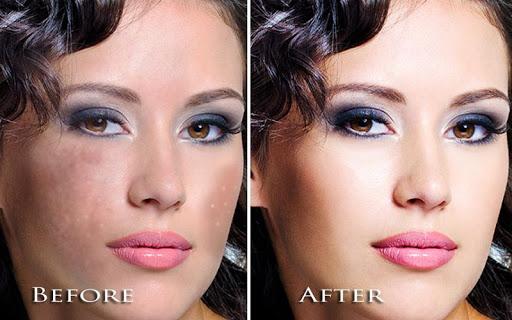 顔のシミを除去|玩攝影App免費|玩APPs