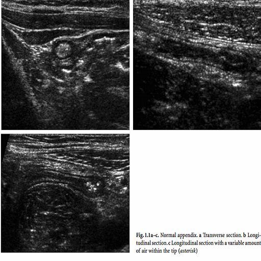 Acute Appendicitis Ultrasound