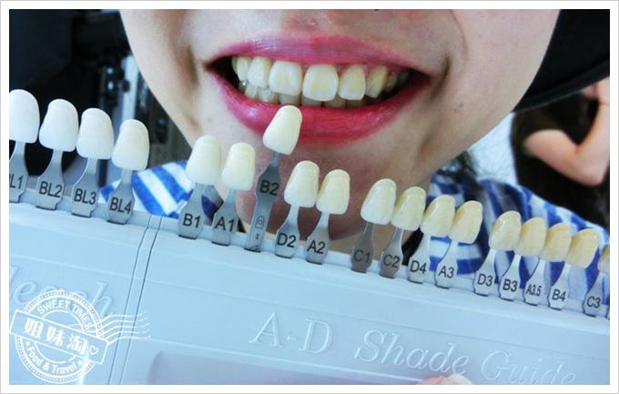冷光美白牙齒