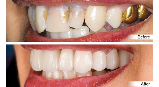 A person smiling with gold fillings before and after with whitened teeth