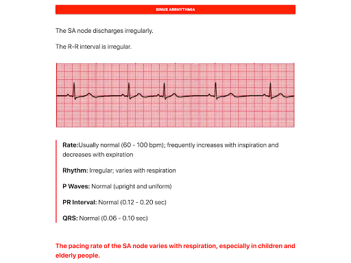 Download ECG FlashCards on PC & Mac with AppKiwi APK Downloader