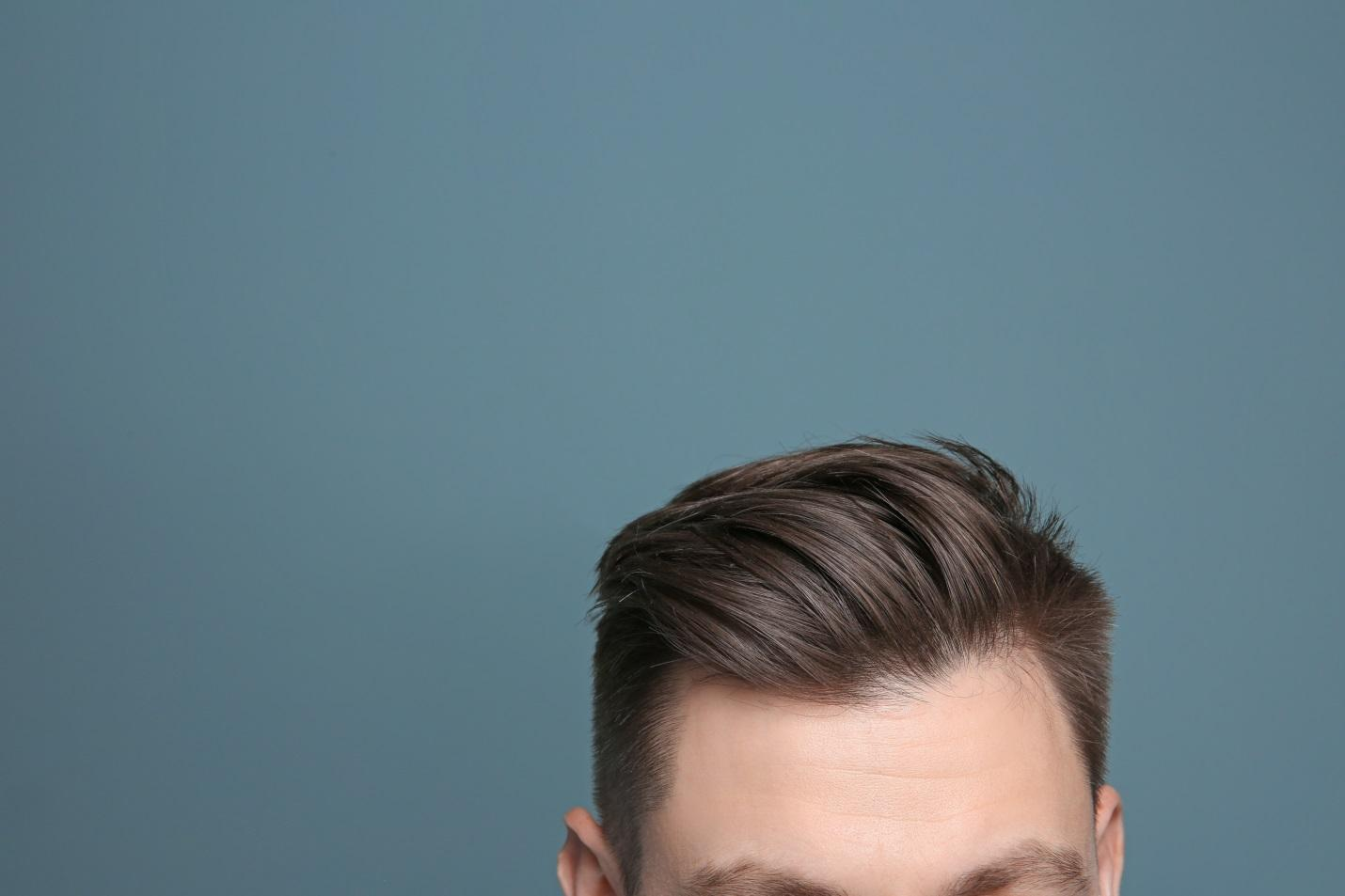 C:\Users\Danièle Adler\Downloads\Canva - Young man with hair loss problem on color background.jpg