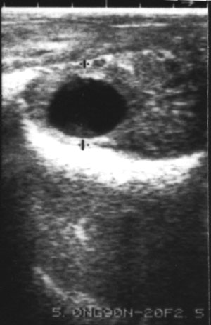 Ultrasonograms of corpus lutea of pregnancy. Cavitary corpus luteum with a circle of echodense lutein tissue surrounding the persisting central echonegative core.