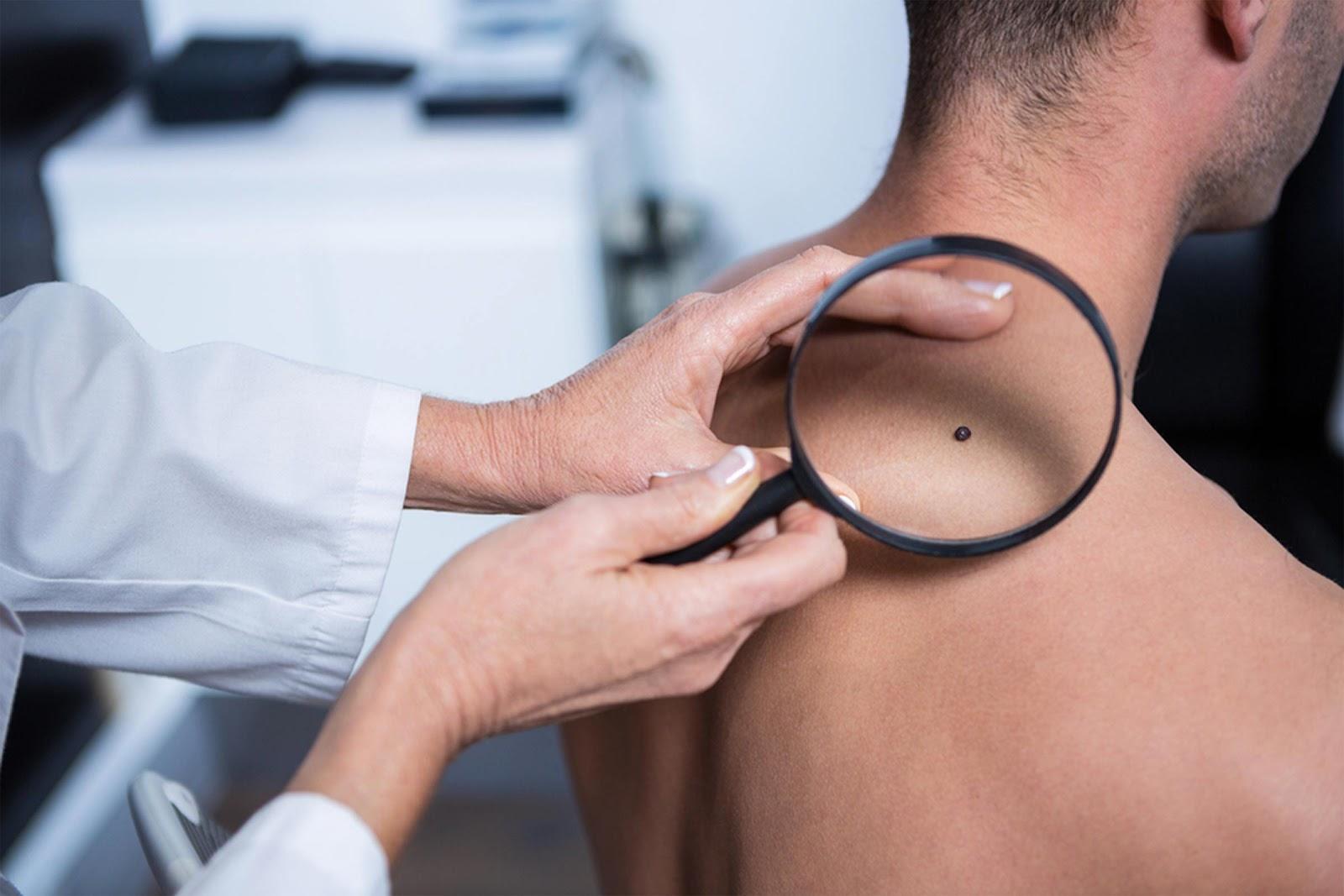 اسباب حكة الراس والرقبه - سرطان الجلد