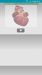 Cardio3D - náhled