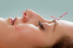 Facial Enhancement Acupuncture In Glasgow