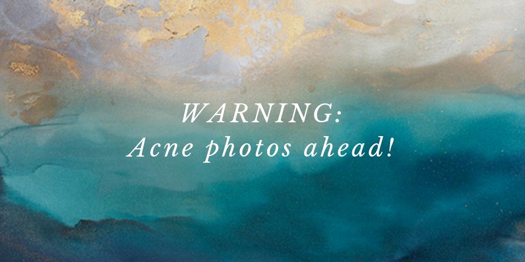 WARNING: Acne photos ahead!
