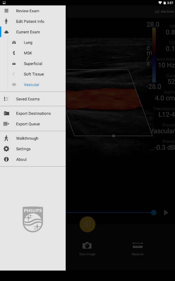 Philips Lumify Ultrasound App- screenshot