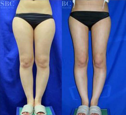 4Dスカルプ脂肪吸引(大腿+臀部+膝)術後3ヶ月