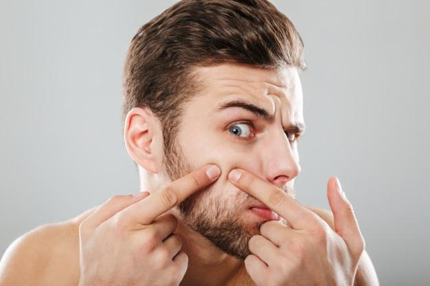 Close up portrait of a man squeezing pimples  humidity and acne