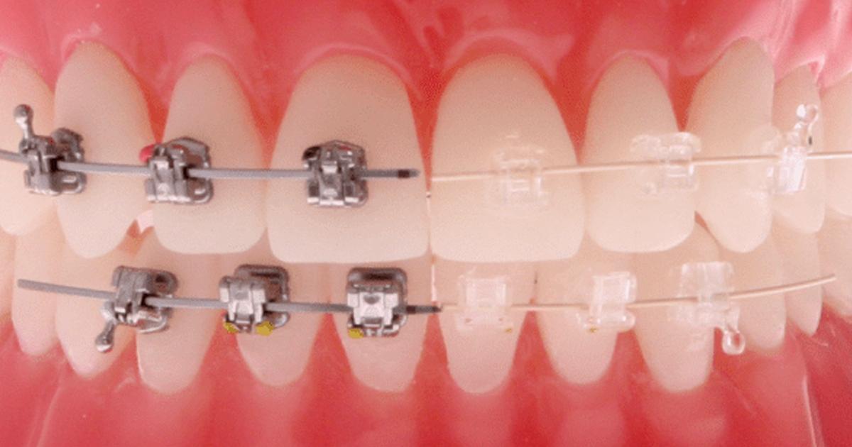 Aparelho Metálico x Aparelho Estético, qual indicar? - Dental Speed