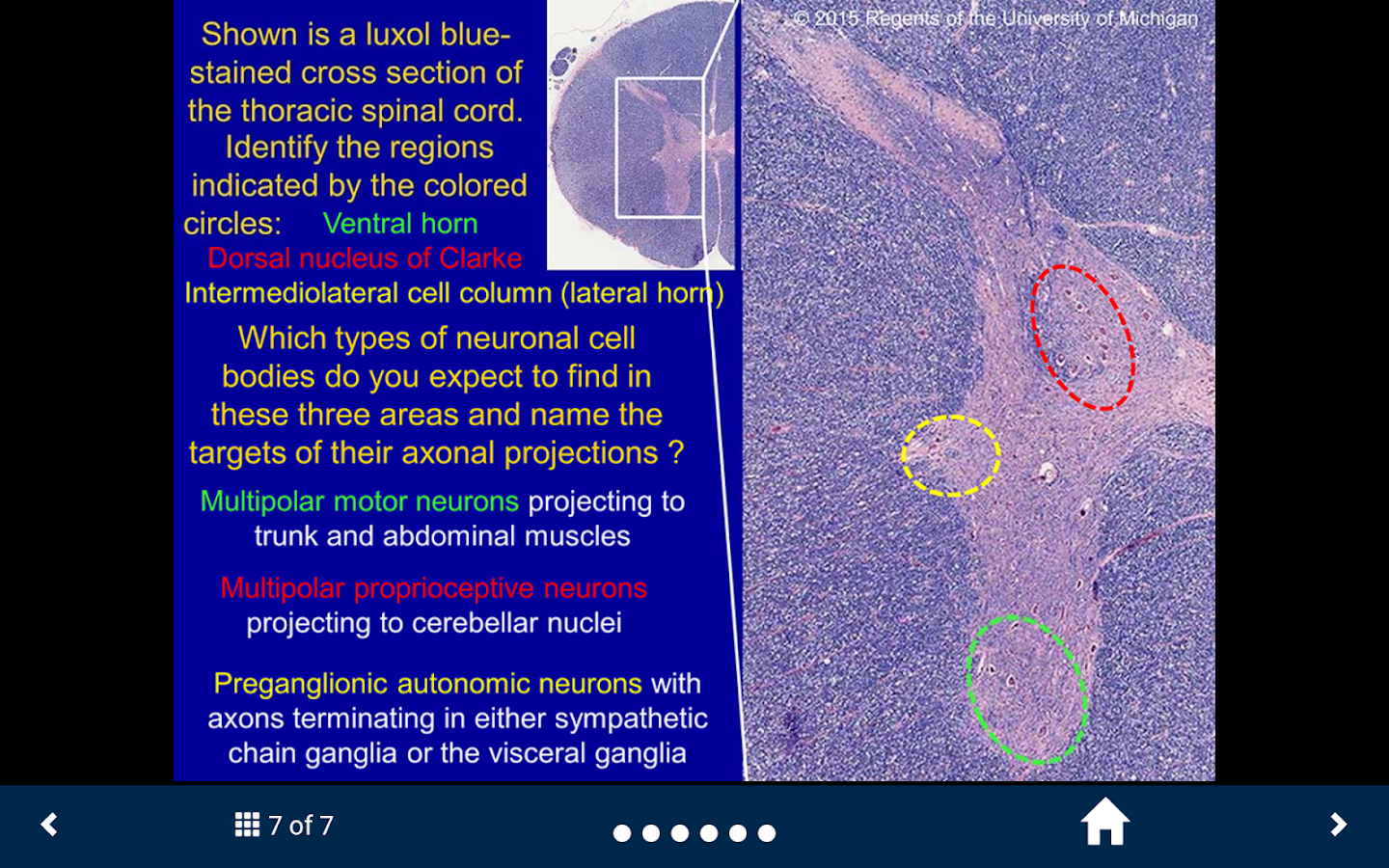 Neuroanatomy Lite - SecondLook- screenshot
