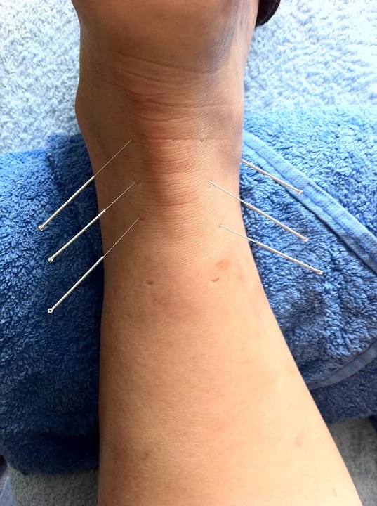 Acupuncture in the achilles