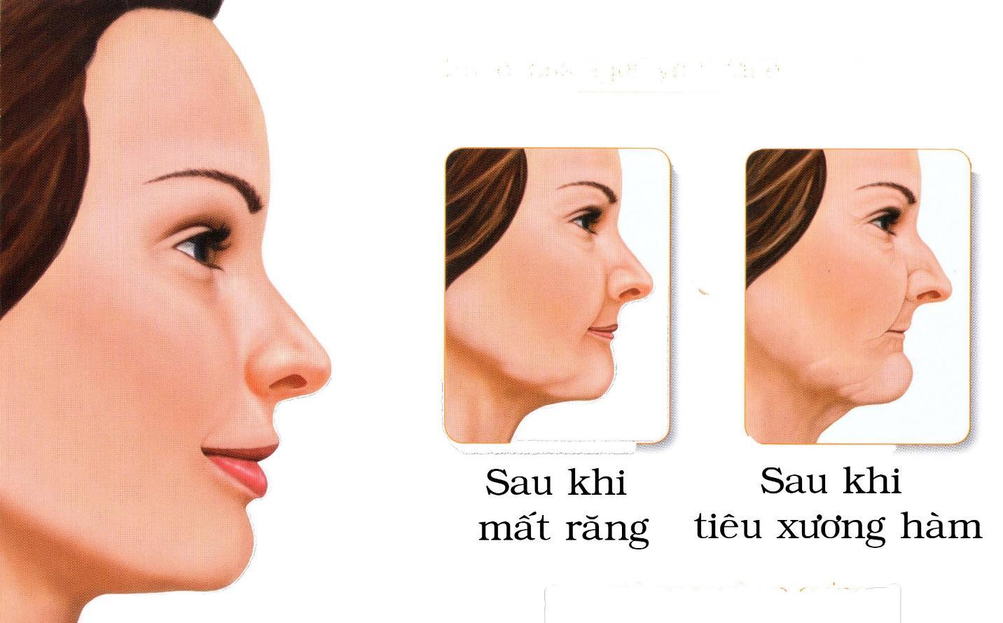 Khuôn mặt thay đổi khi bị mất răng và tiêu xương hàm